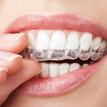 Patient placing Invisalign clear aligner tray