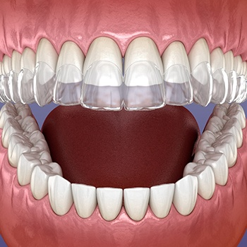 computer illustration of Invisalign aligners being placed over teeth