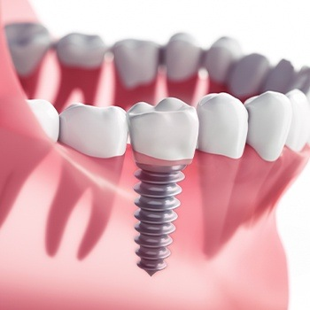 Animated dental implant supported dental crown restoration