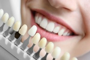 What Does the Color of Your Teeth Say About You?