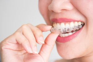 woman putting on an Invisalign tray
